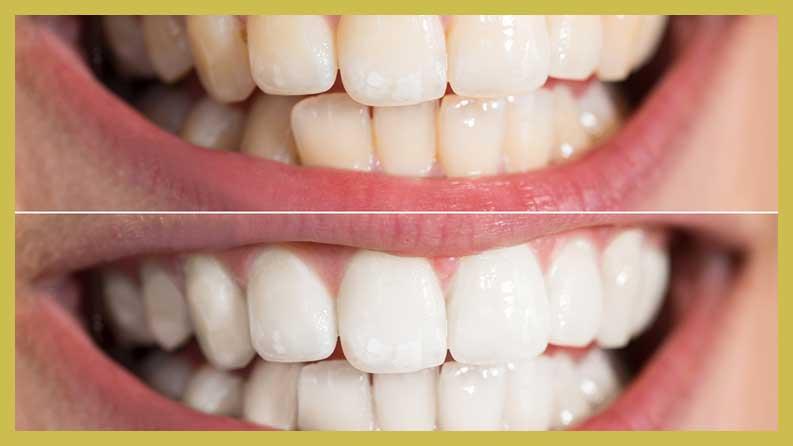 Venus Tooth Whitening Eten Dental