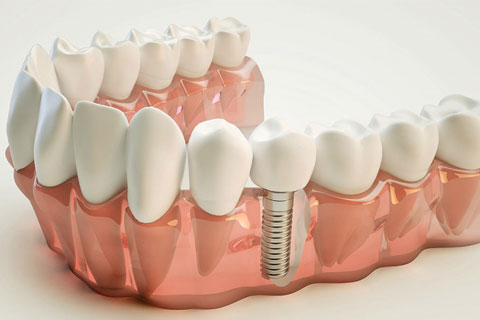 Timelines: Dental Implants and Replacing Missing Teeth