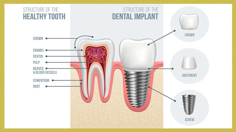 Antibiotics: Yes or No for Dental Implants?